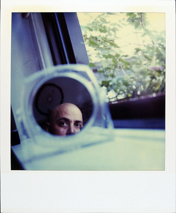 29 июля 1997 года: у Джейми выпадают волосы из-за химиотерапии.