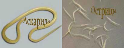 признаки наличия паразитов в организме