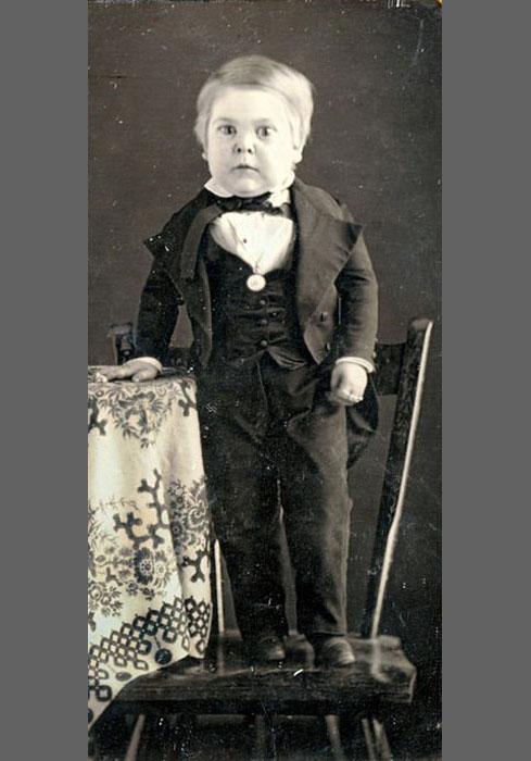 Чарльз Шервуд Страттон в возрасте 10 лет.  Самым известным карликом в истории является Чарль