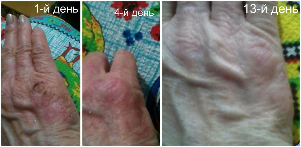 Hand&Nail Therapy результат применения