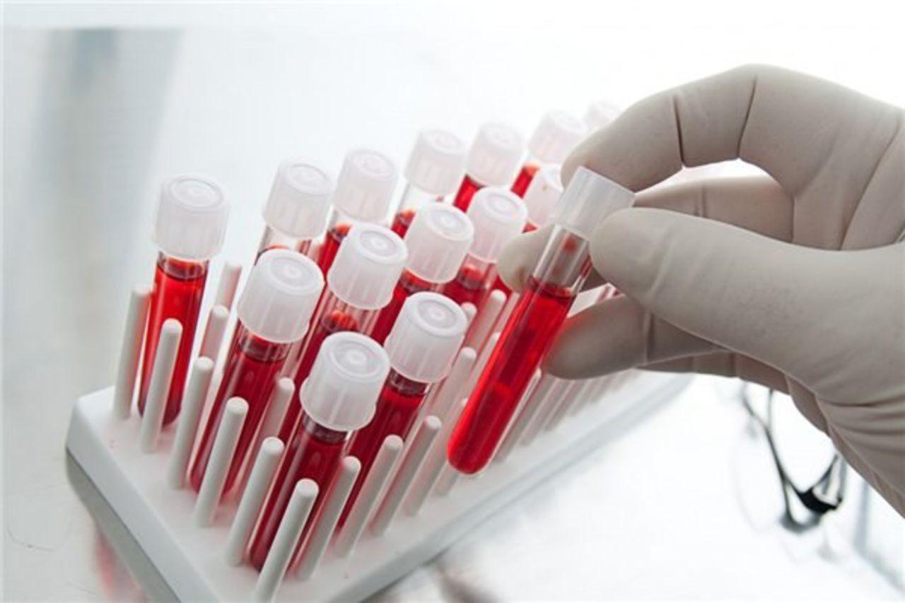 Ученые установили возраст прародителей ВИЧ