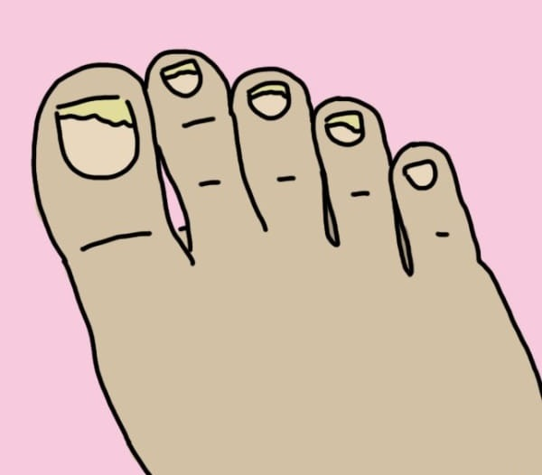 Молоткообразные, деформированные пальцы  Такое распространенное нынче плоскостопие, артроз и