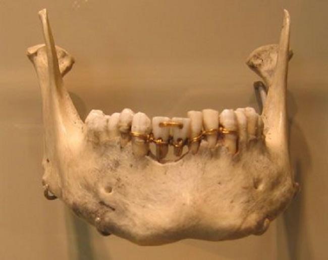 © dentalassistant.net  ВДревнем Риме существовали свои стоматологи , асами римляне очень заб