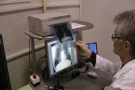 ВКалининградской области снижается заболеваемость туберкулезом