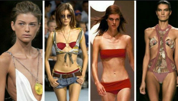 anorexic models