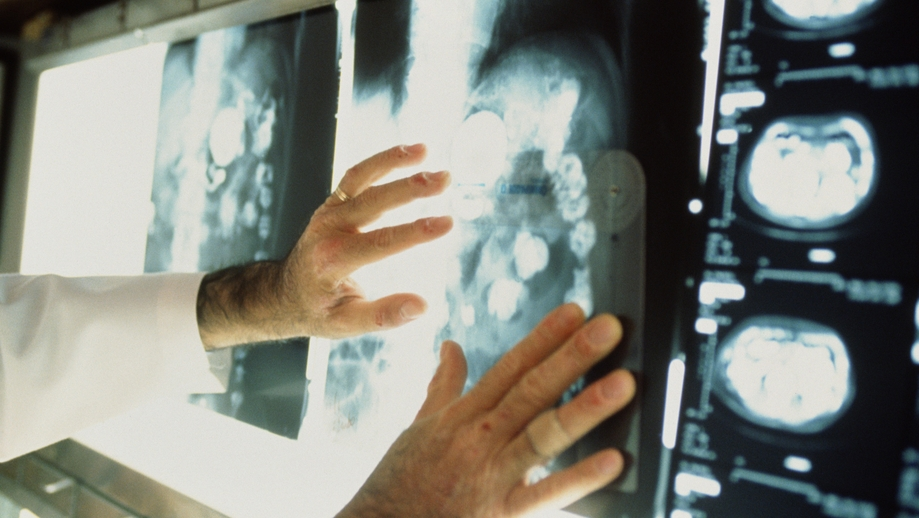 Около 280 тыс. граждан  столицы  страдают отонкологических заболеваний