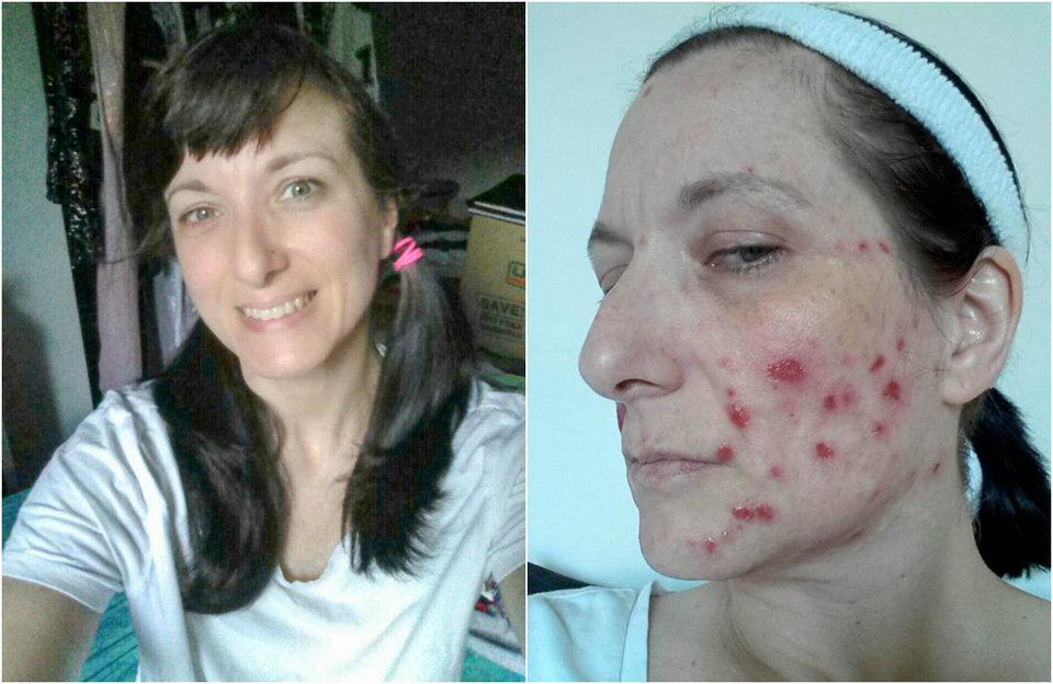 Женщина не выходит из дома, потому что с детства отрывает кожу на своем лице и конечностях