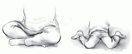 Скрещенные ноги и поза «W»