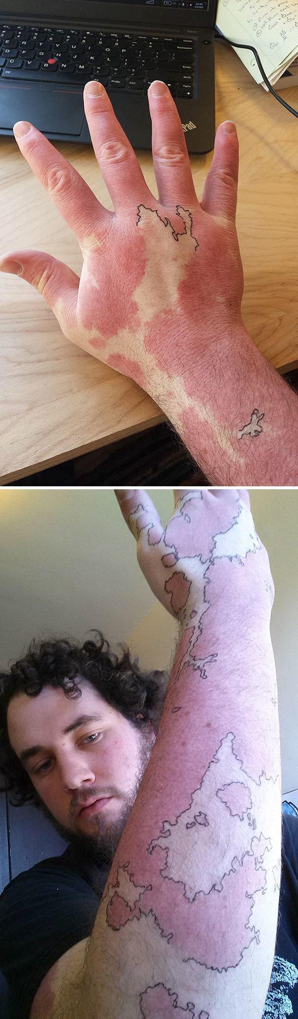 Родимое пятно – как карта воображаемого мира. И хотя это не татуировка, концепция действительно