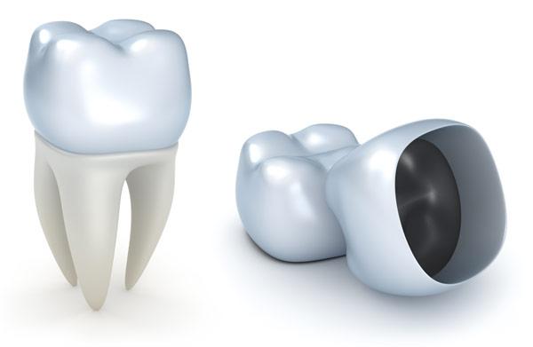 что такое коронка на зуб