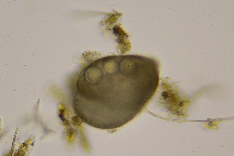 Капля болотной воды под микроскопом: одноклеточные и многоклеточные организмы, инфузории с ресничками, водоросли со жгутиками, простейшие