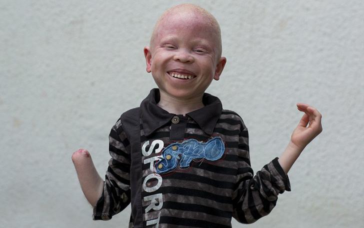 Танзанийские альбиносы, чьи тела стоят дороже золота (23 фото)