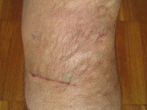 коленка после операции