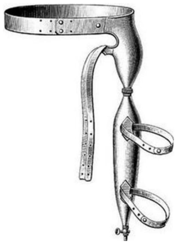 Антиэрекционные устройства (около 1800 года) – при возбуждении шипы впивались в плоть.
