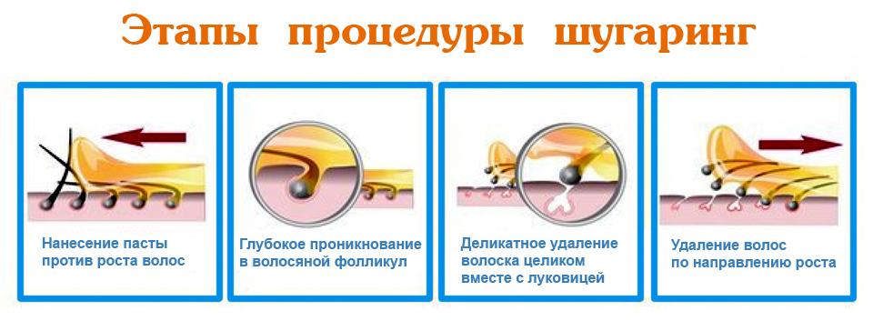 этапы шугаринга
