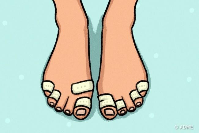 Если вызаметили, что пальцы ног выдаются вперед, сильно натягивая ткань, или появляются мозоли, то