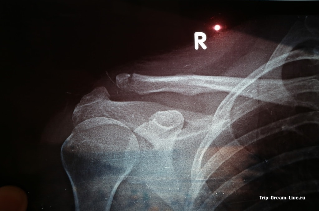 ...и рентгеновский снимок