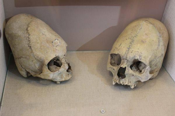 Деформированные черепа из Керченского археологического музея Такие же вытянутые черепа археологи ран