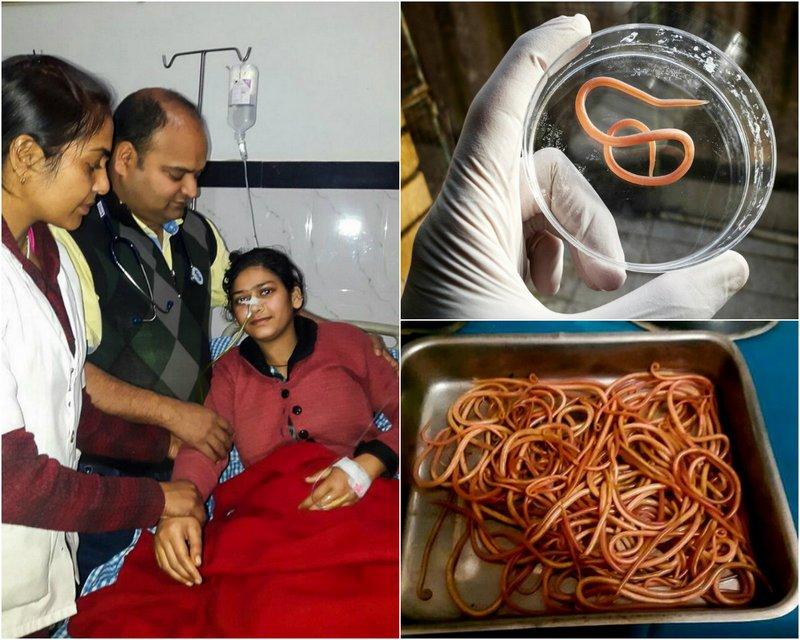 Из желудка индианки извлекли 150 червей