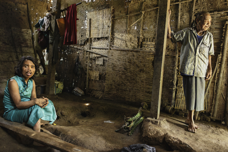 40-летний Саймун не может говорить. Он живет в лечебнице уже пять лет. Все это время одна его нога з