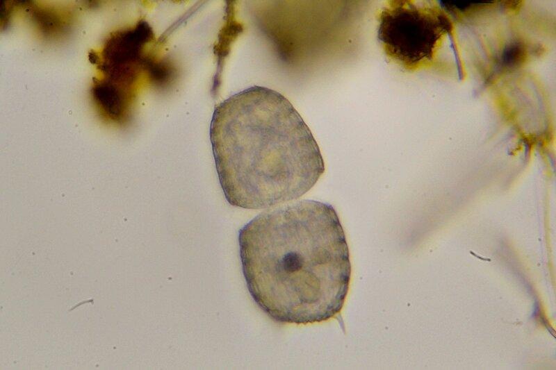 Делящаяся пополам инфузория колепс (coleps) Капля болотной воды под микроскопом: одноклеточные и многоклеточные организмы, инфузории с ресничками, водоросли со жгутиками, простейшие