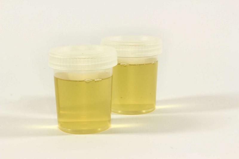 Продукты и напитки, которые содержат мочу и фекалии