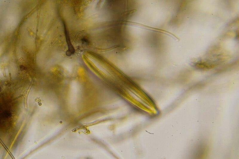 Одноклеточная водоросль вроде эвглены? Капля болотной воды под микроскопом: одноклеточные и многоклеточные организмы, инфузории с ресничками, водоросли со жгутиками, простейшие