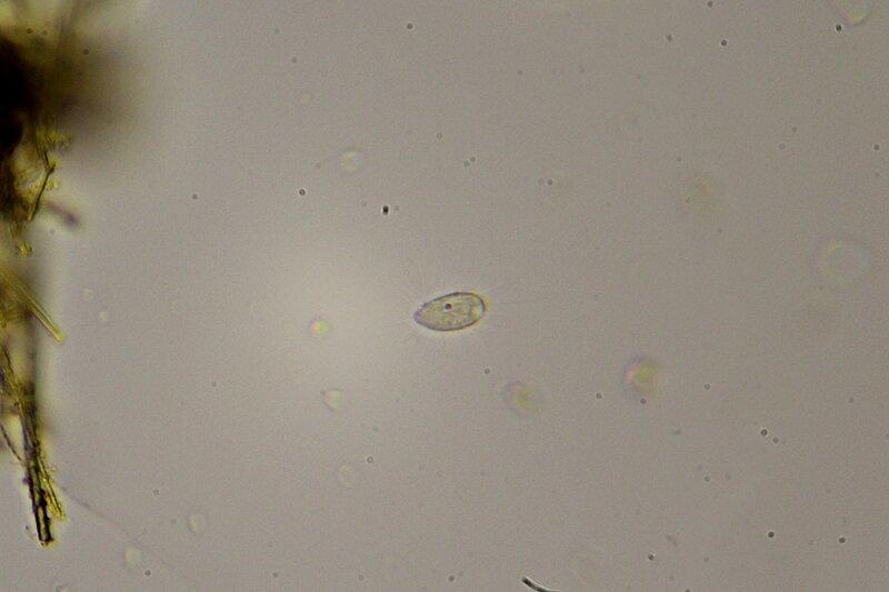 Капля болотной воды под микроскопом: какое-то одноклеточное существо со множеством расходящихся от него нитей