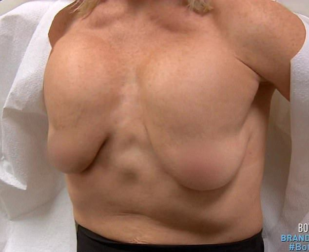 После неудачной операции по увеличению груди американка вынуждена была крепить ее скотчем