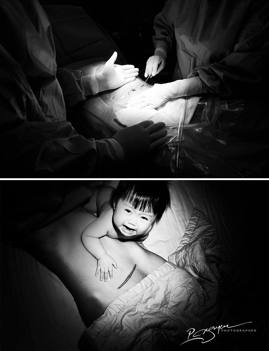 «Шрамы — женская фобия. Как только она их видит, она пугается и начинает плакать».