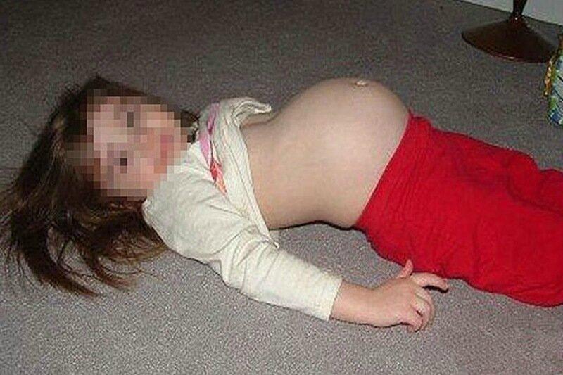 Девятилетняя девочка в Мексике стала мамой