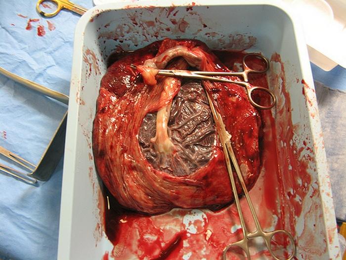 4. Крем от морщин из плаценты Производители крема от морщин из плаценты уверяют, что благодаря их пр