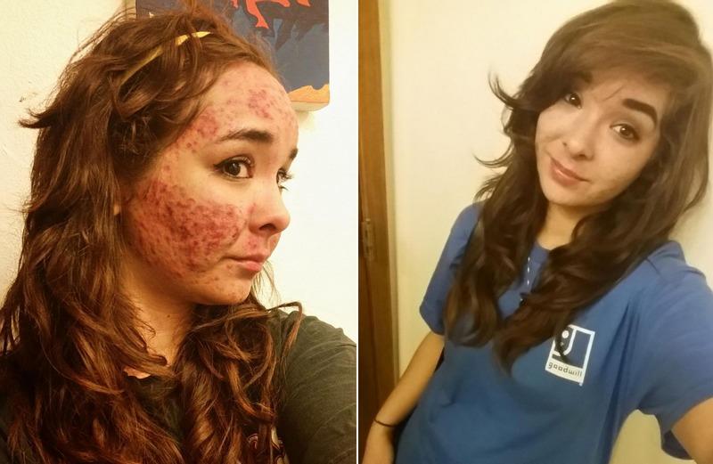 Бывшая наркоманка с навязчивой манией ковырять себе лицо