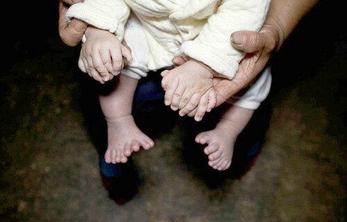 В Китае на свет появился мальчик с 31 пальцем
