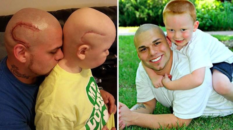 Что бы поддержать сына, отец сделал татуировку, напоминающую шрам сына