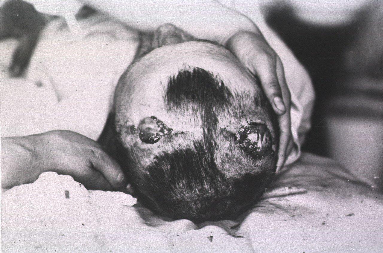 Вид двух открытых ран в верхней части головы пациента