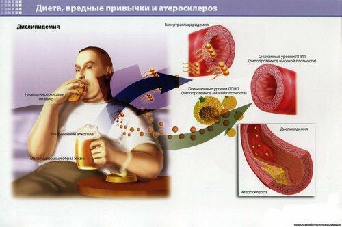 Врачи бьют тревогу, атеросклероз - болезнь современности