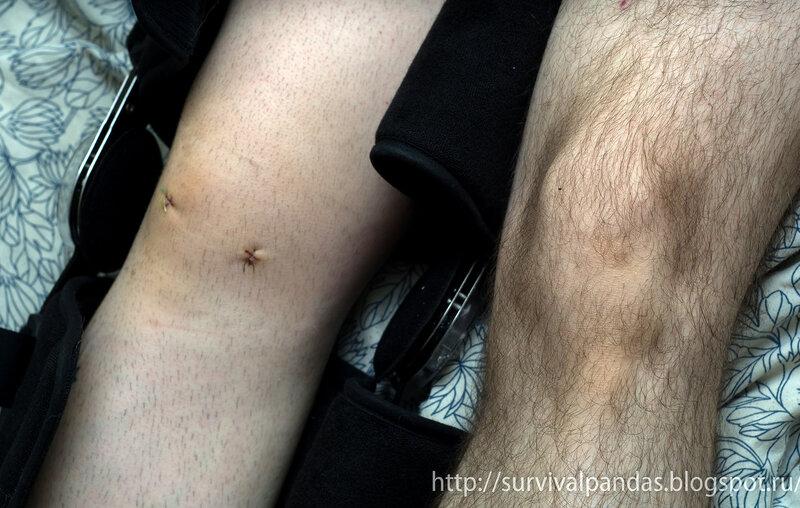 Артроскопия коленного сустава омс вытяжка при артрозе тазобедренного сустава