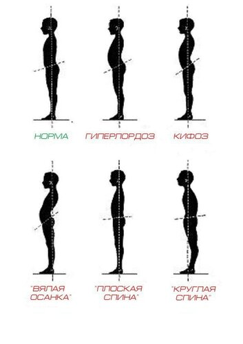 Синдром прямой спины что делать