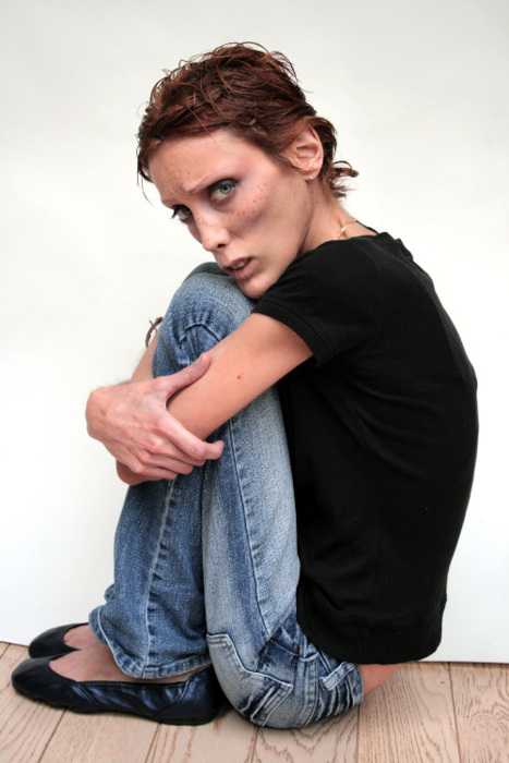 ***File Photos***Anorexic model Caro dies at 28 Isabelle Caro, the French model who gave anorexia a face, has died. She was just 28. Caro passed away on 17 November (10) after battling the eating disorder for almost 15 years. She shocked and stunned t