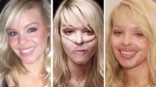 андреа пежич фото до операции и после