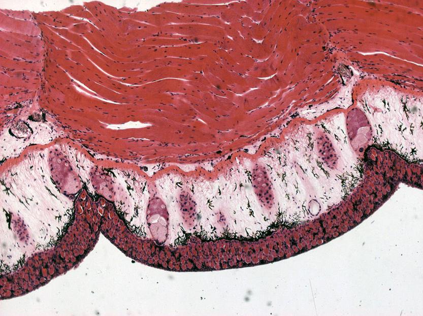 Клетки Лейдига фото