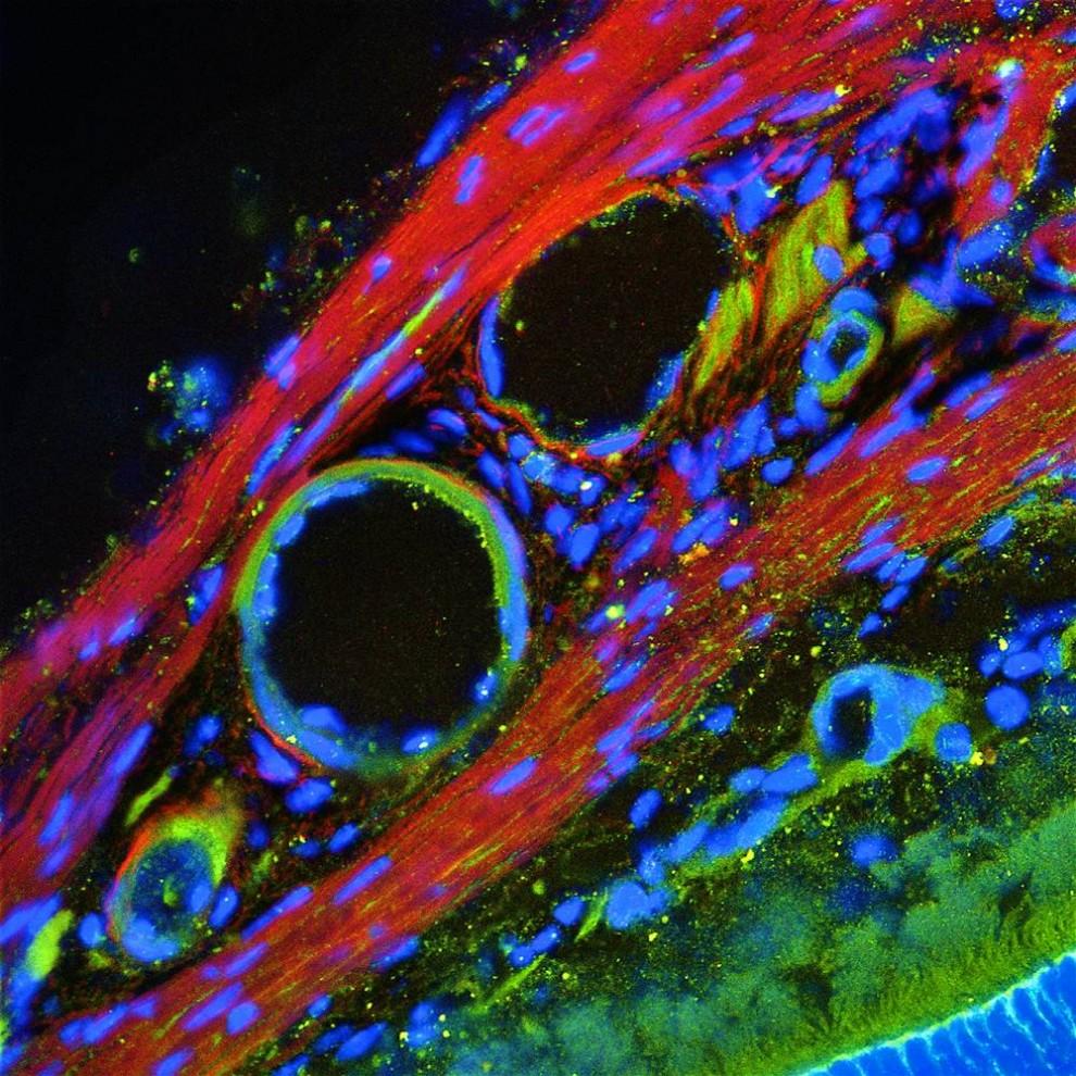 12. На этом снимке изображен замороженный срез мышиного глаза, на котором видно соединительную ткань