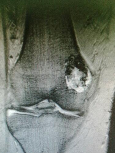Хондрома бедренной кости | Rentgenolog.info