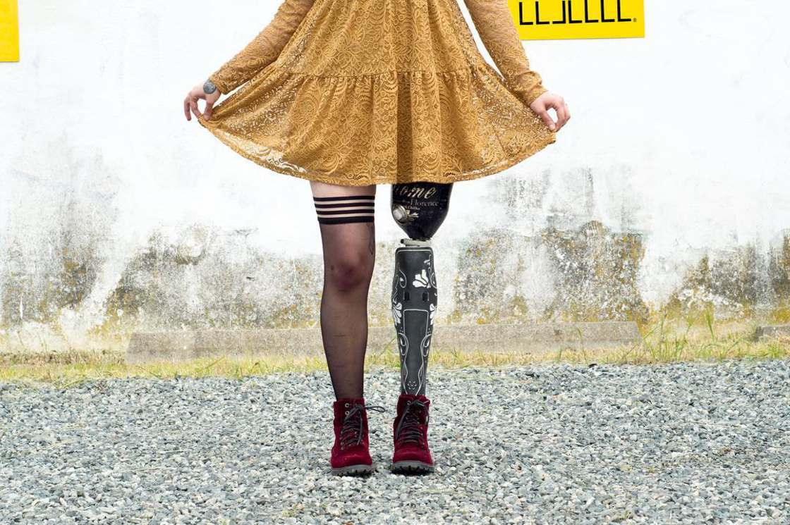 Alleles Design - When prosthesis becomes a fashion accessory