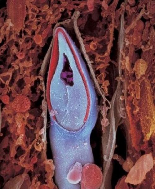 Спустя неделю зародыш, скользя вниз по фаллопиевой трубе, переселяется в матку