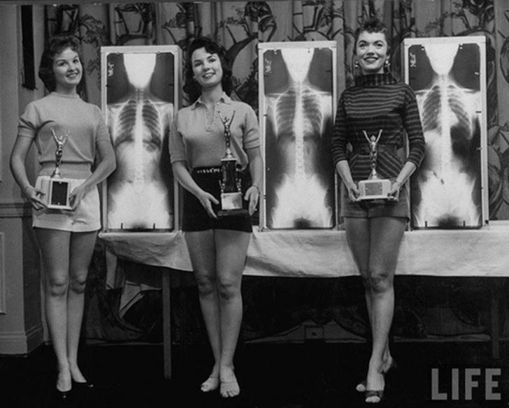 А вот победительницы конкурса «Мисс Идеальная Осанка» на конвенции мануальных терапевтов в 1956 году