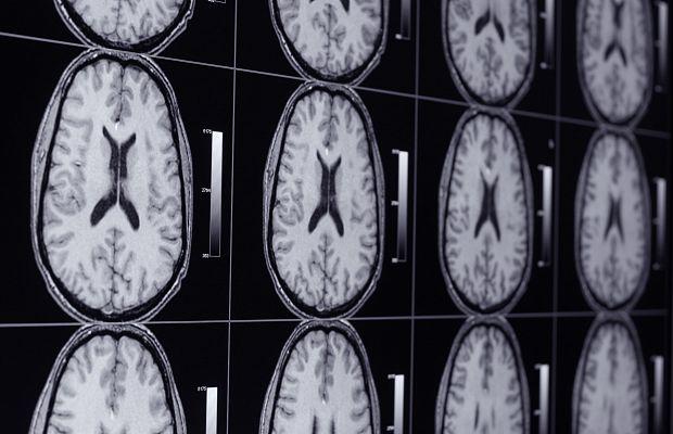 Ученые доказали, как достаточно серьезно  просмотр порнофильмов влияет наработу мозга мужчин
