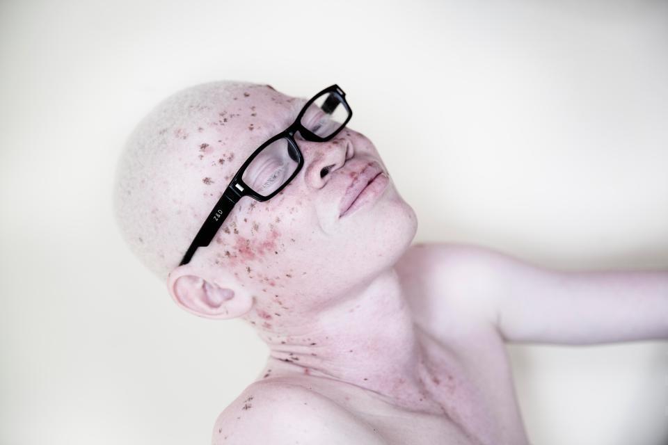 Невероятные портреты альбиносов Танзании