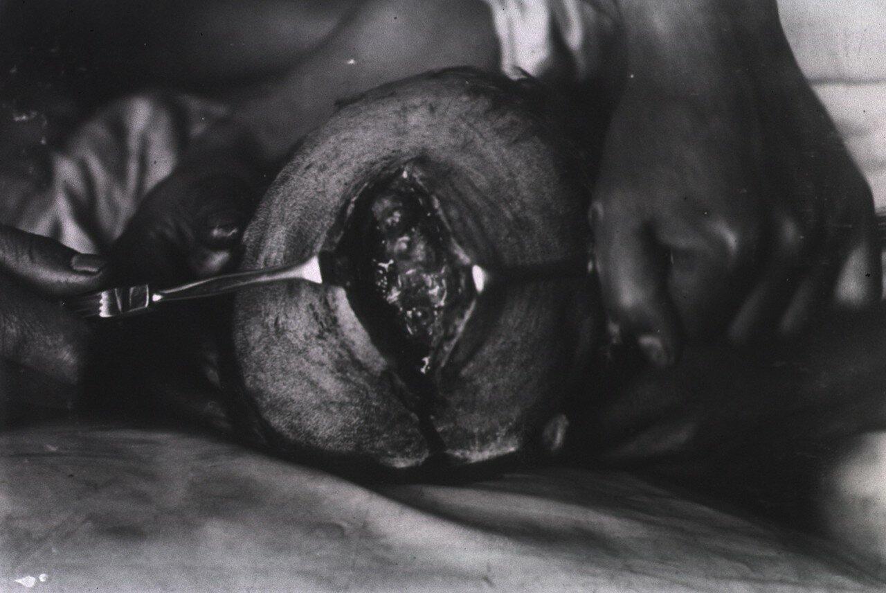 Хирургические инструменты используемые для зажима ран на голове пациента